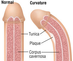 Are there any treatments for peyronie disease?