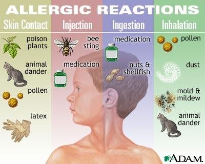 What is the best prescription medicine for indoor mold allergies?