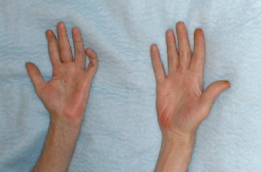 My outer palms are red. They have been like this since I had my daughter three years ago. There is no itching or pain. My dr did labs for lupus and rheumatoid arthritis which came back fine. I don't smoke or drink.?