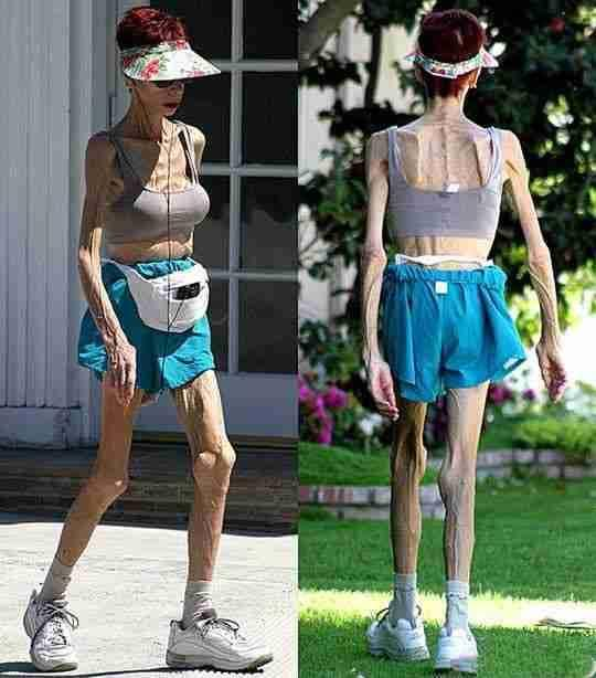 How can I gain weight after being an anorexic?