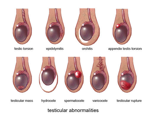 Why pain in left testicle?