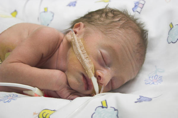 How long is the recovery time following open heart surgery on an infant?