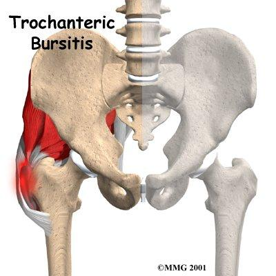 What are the most common bursitis problems?