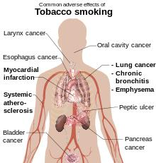 I want quit smoking can some one help me?