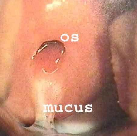 Creamy Cervical Mucus Cervical Mucus no Matter