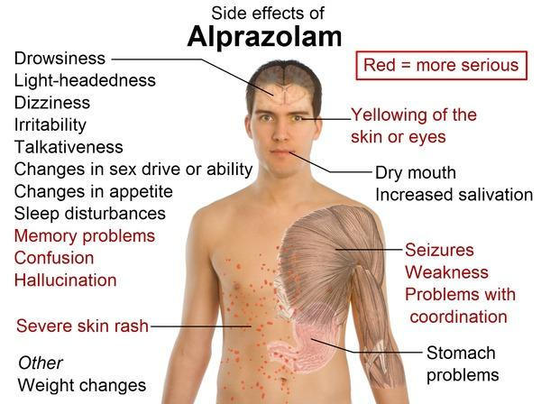 Can alprazolam cause nausea? I also have gallstones.