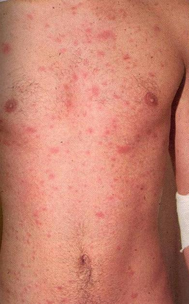 Wut does an HIV rash look like?