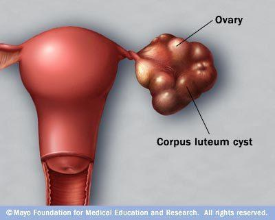 Can chlamydia  couse cysts on female overies?
