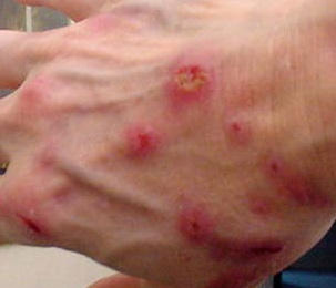 What kind of treatments are there for Morgellons disease?