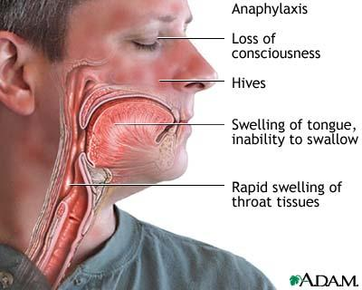 What causes the thrat to constrict and shut off breathing a bit?