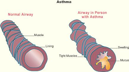 What is asthma wt r the permently solution