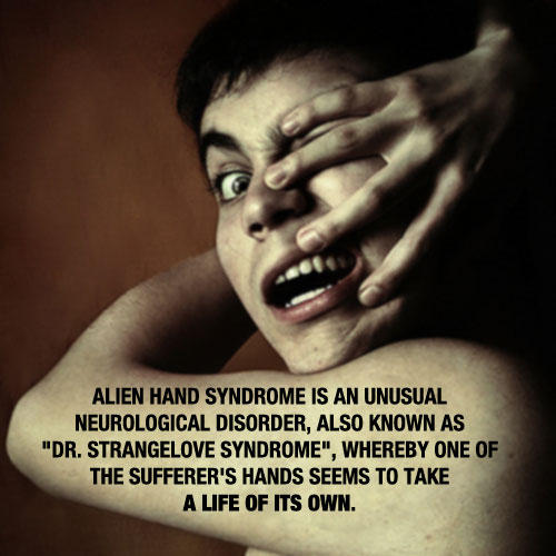 Please provide me information on alien hand syndrome?