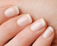 Can a healthy diet reverse thin nails?