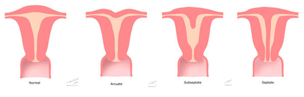 I'm getting my vaginal septum removed soon I want to know can I get on of the uterus removed also?