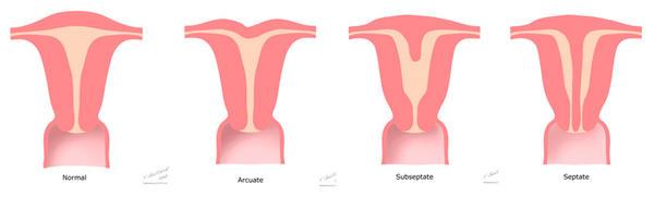 Abnormalities of the uterus in pregnancy - BabyCenter
