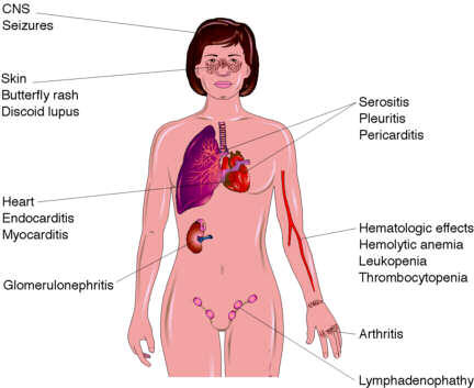 What are the symptoms for lupus and can u have just the lupis trate?