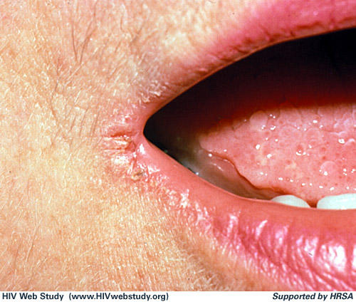 What causes angular cheilitis and how can one treat it?