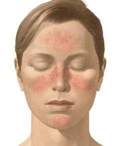 Is rosacea associated with raynaud's disease?