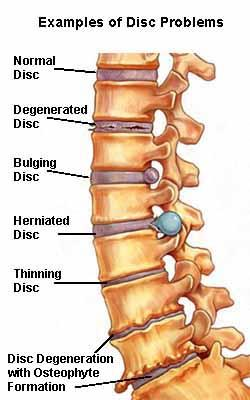 "I have a low back disc herniation from 4 yrs ago, pain has come back. Physiatrist  "" disc flare up"". Possibility this is a spinal tumor?"
