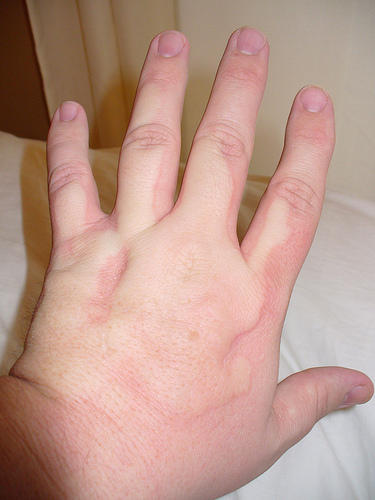 Why do my hands swell up after exercising \?