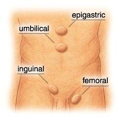 What are the symptoms of hernia in women and location?