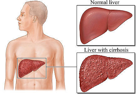 Is there an effective treatment for chronic hepatitis b?