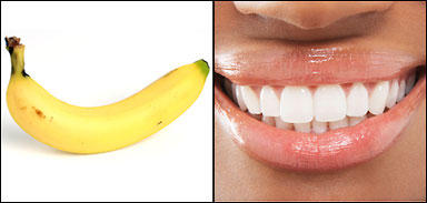 I've seen that rubbing your teeth with a banana peel will whiten them... True or is it a lie?