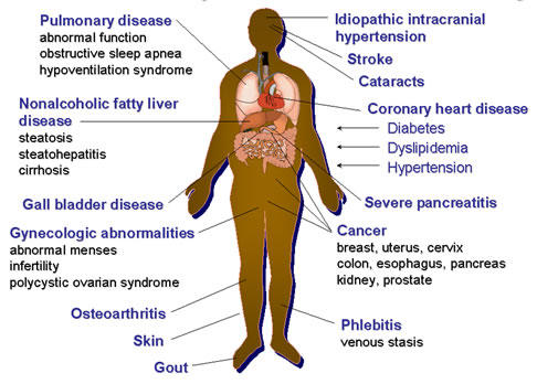 What are the symptoms of obesity of the extreme kind?
