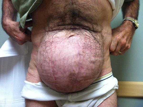 What's the recovery from a hernia operation like?
