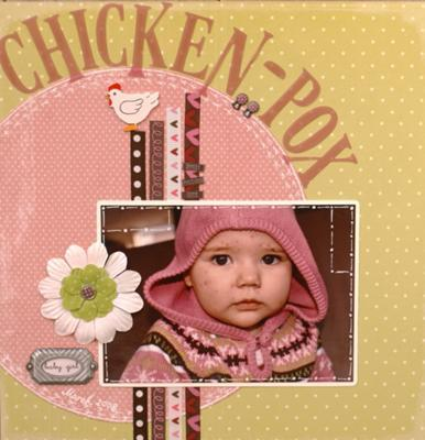 What are the causes of chicken pox in pregnancy?