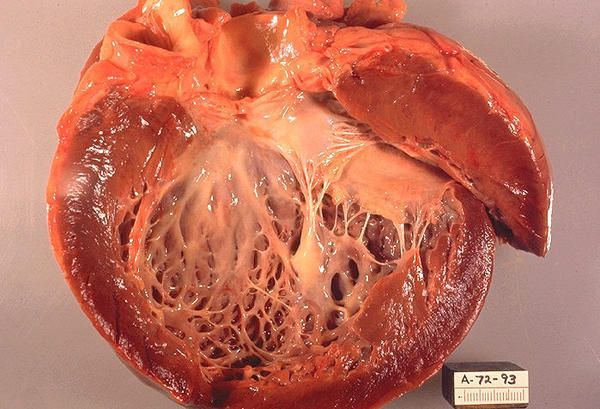 Can you describe the pathophysiology of dilated cardiomyopathy?