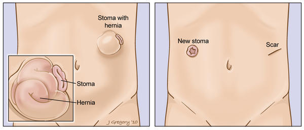 "Could the extreme pain i'm experiencing be a hernia of some sort? Colostomy reversal done last week & pain is on rt side 1-2"" below stoma location"