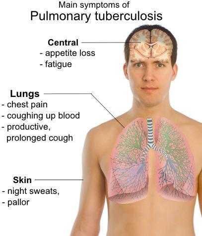 What are the symptoms of pulmonary tuberculosis?