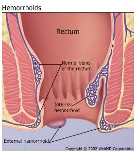 My wife has just undergone surgery for hemorrhoids for the past few days but its still very painful until now.Is this normal?How to ease the pain?