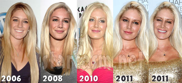 Plastic surgery celebrities before and after?