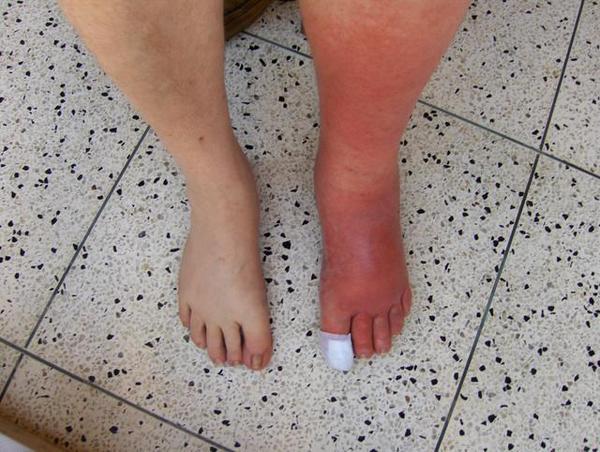 Как лечить рожистое воспаление ног в домашних условиях