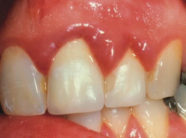 Gum Disease Dr Abel Loredo S Insights On Healthtap