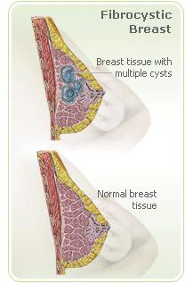 Can a period tracker provide information about tender breasts?