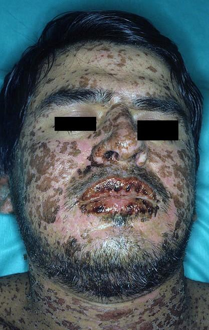 What is stevens johnson syndrome pictures would help?