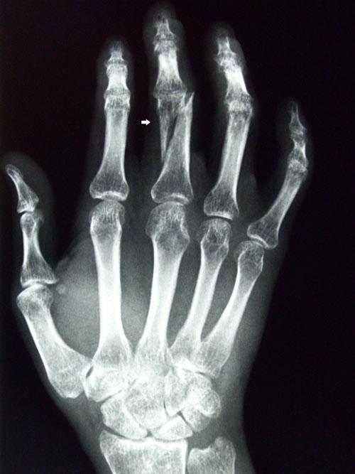 I fell on my fingers earlier tonight. My middle finger has a super sharp pain when I bend it. Is it broken?