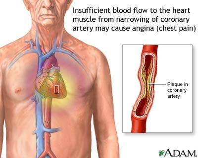 Does relief of chest pain with nitroglycerin mean coronary artery disease?