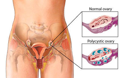 Is there an alternative medicine that is helpful for polycystic ovarian syndrome?