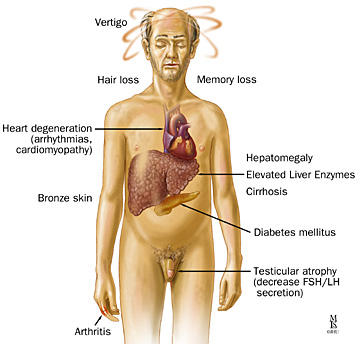 Can hematomacrosis cause neurological symptoms?
