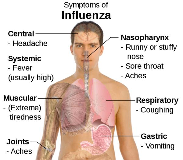 Influenza  symptoms&its protection
