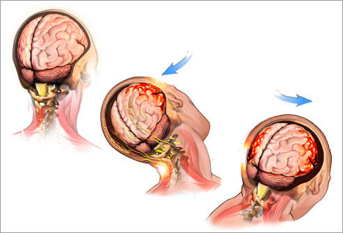 What can be done for post concussion body weakness?