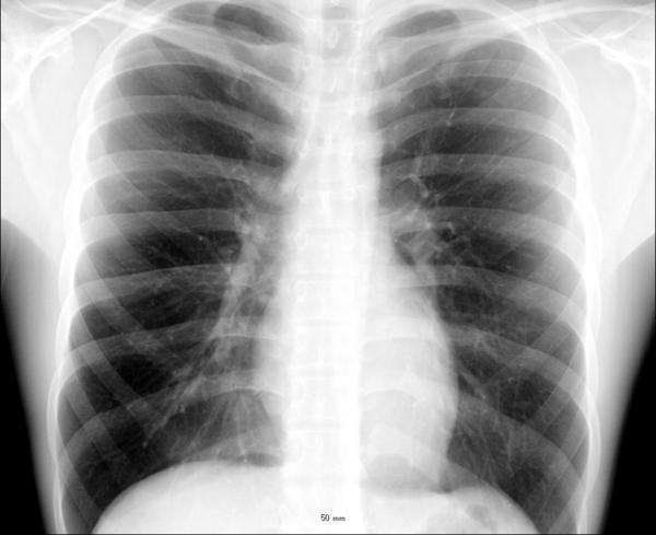 Chest pain in the middle of the chest--what do I do?