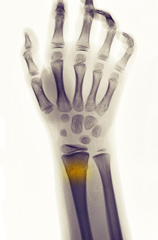 How can you tell if your broken wrist never healed properly?