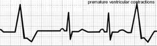 Are cold extremeties difficulty breathing and weakness symptoms of pvcs? And what's with trigeminal pvcs. Is it life threatening if happens most of the time?