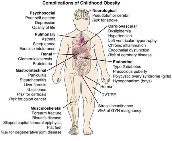 What in long run are the effects of obesity on health?