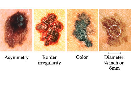 What is the life expectancy for a patient with stage 3 or 4 melanoma?